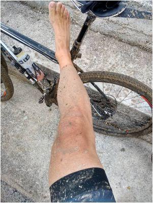 BikeBlatoNoga